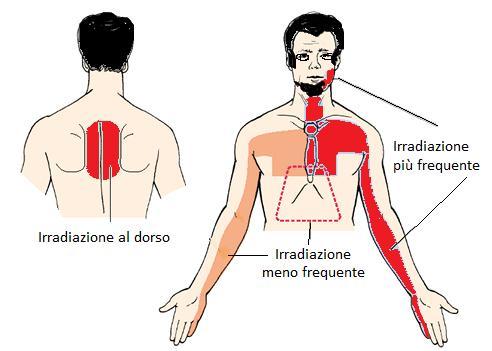Petto osteochondrosis sintomi e trattamento di una targa